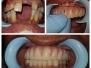 Implant11