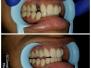 Implant14
